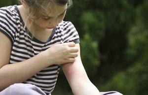 sivrisinek cocuk yaz alerji kasinti