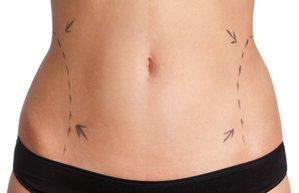 estetik liposuction yag transferi gobek