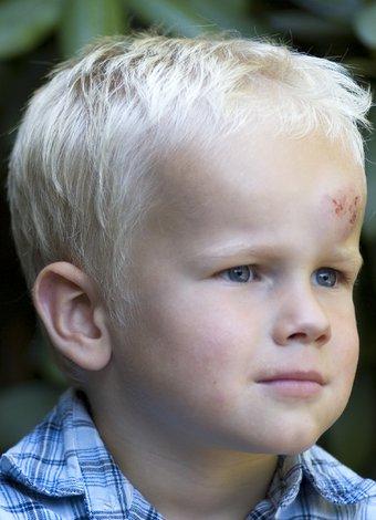 Bebeklerde ve çocuklarda kafa yaralanmaları cocuk kafa yaralanma 1