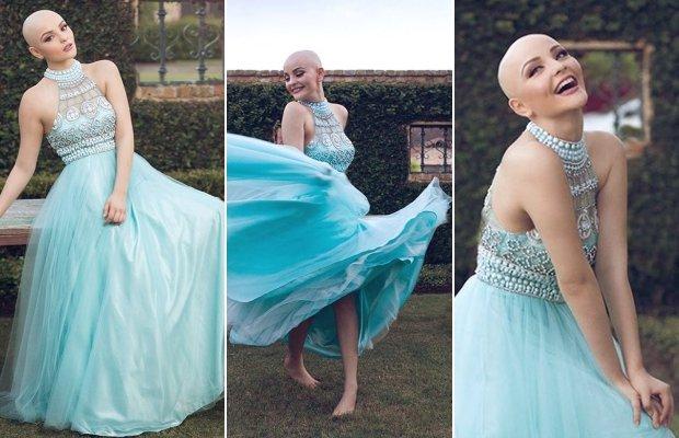 Kanser genç kadını modellik hayalinden vazgeçiremedi