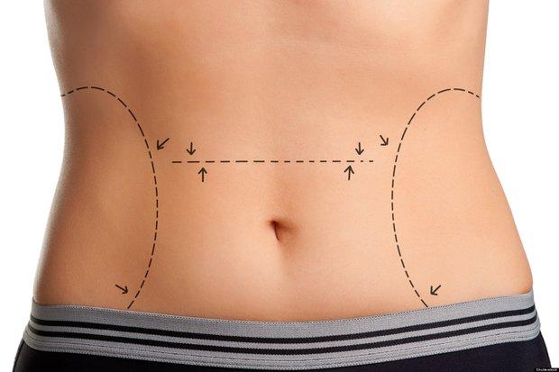 Liposuction ile bölgesel incelme