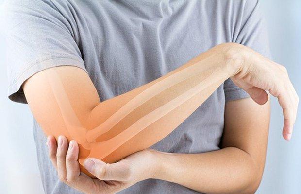 Osteoporoz hakkında 4 gerçek