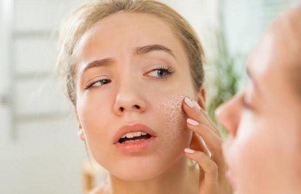 Kış aylarında cildin nem dengesini koruma yolları