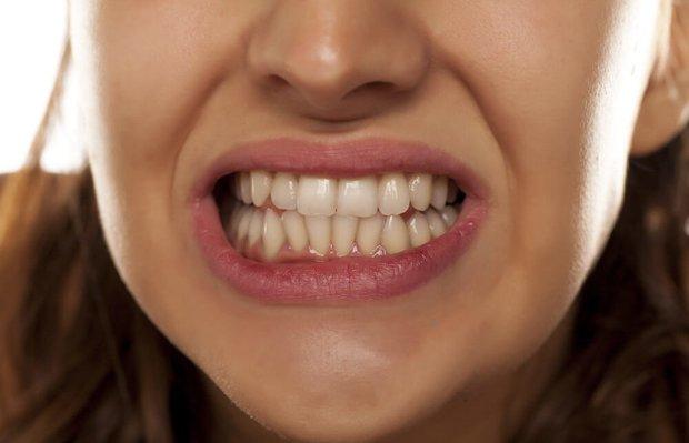 Diş gıcırdatma ve diş sıkma karşı pratik egzersizler